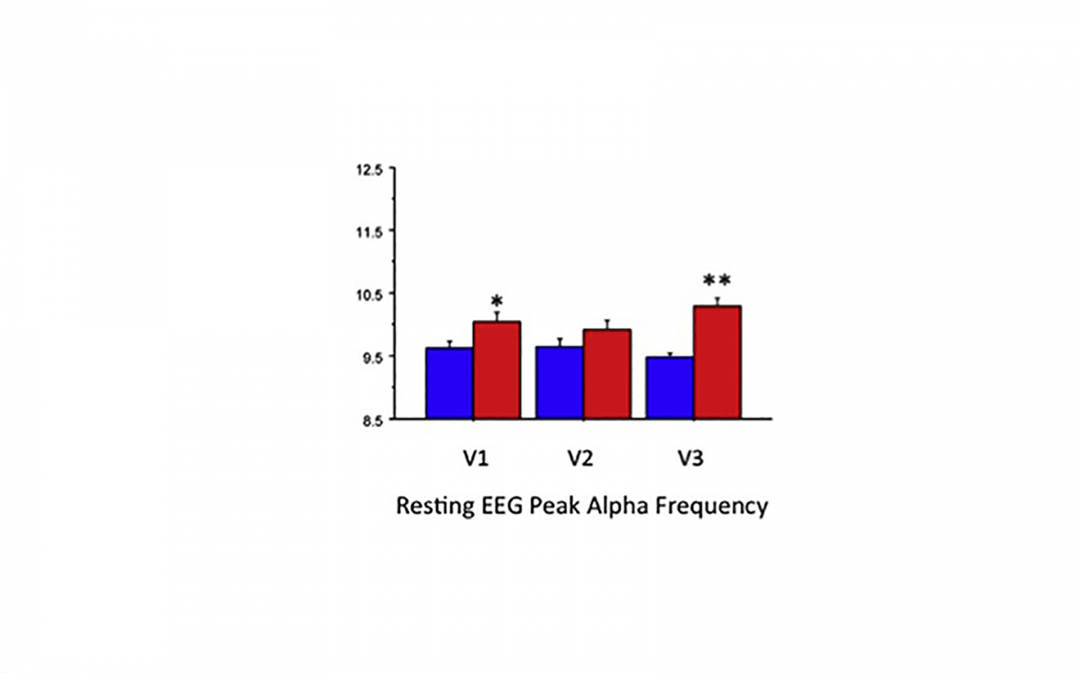 Effects of the Nootropic Compound Alpha BRAIN on ERP and EEG Measures of Cognitive Performance