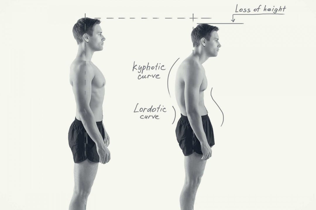 Correlations Between Your Pain Symptoms and Bad Posture